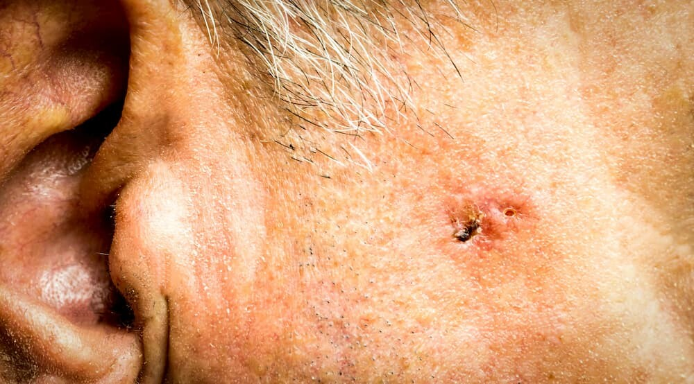 basal-cell-carcinoma-treatment